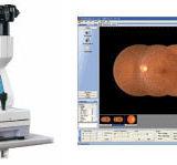 Advanced Eye test at Chapman Opticians
